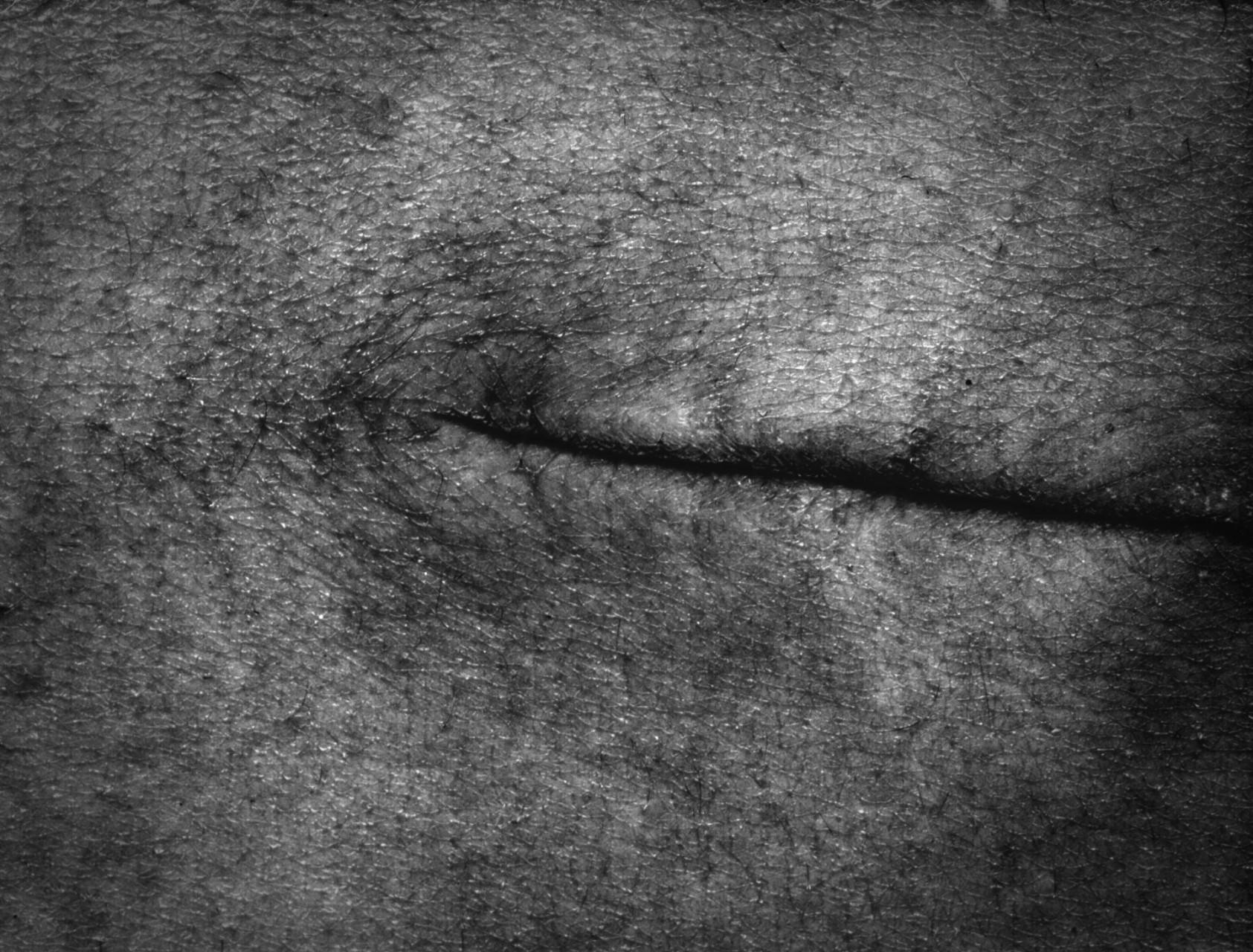 Skin scans